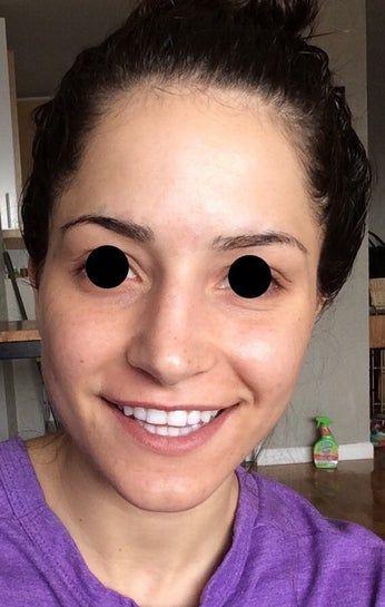 Mặt không cân (nhất là vùng hàm): Liệu tiêm botox có khắc phục được không?