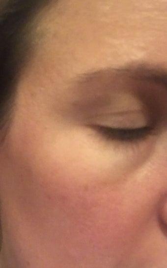 Xuất hiện vết nhăn đuôi mắt khi cười: có lựa chọn thay thế nào khác ngoài botox không?