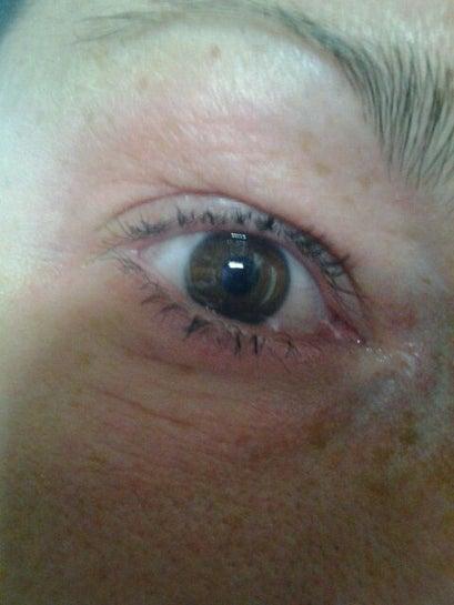 Mí mắt sưng nặng, mờ mắt, xuất hiện bọng mắt và đau đầu sau khi tiêm botox xóa nếp nhăn trán?
