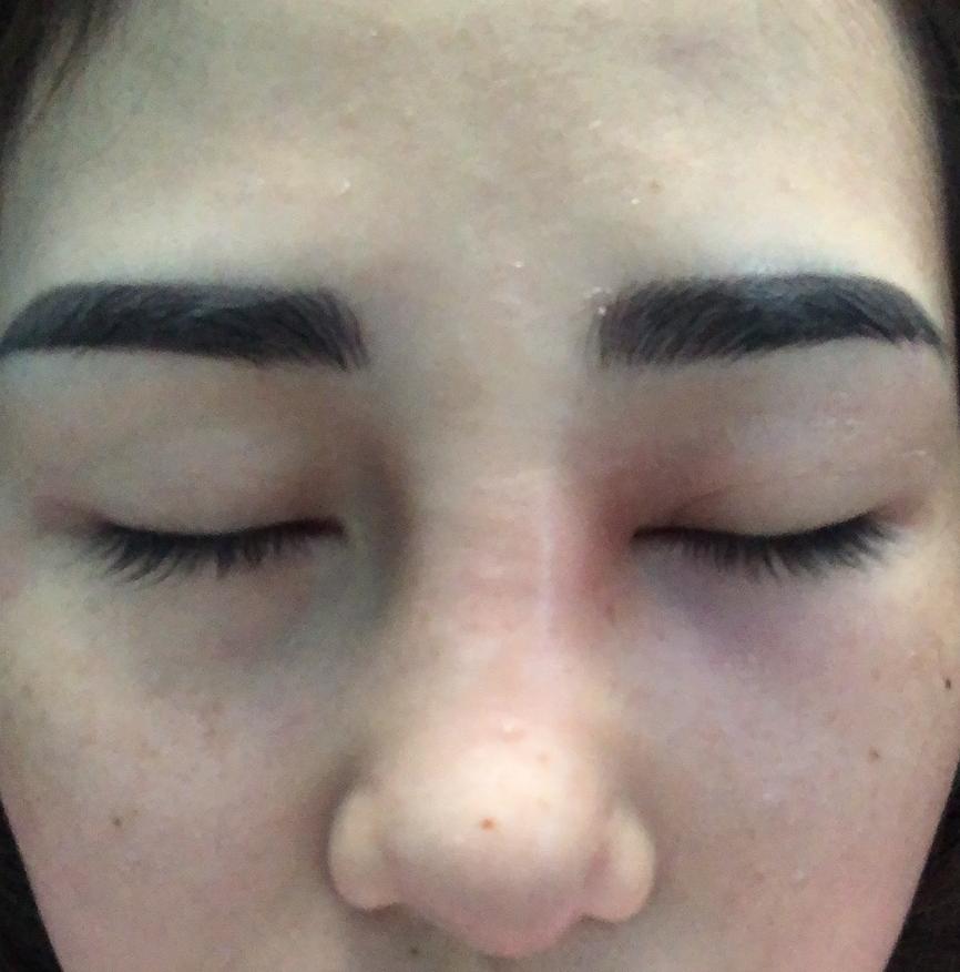 Nâng mũi 1năm sau khi điêu khắc chân mày mũi có dấu hiệu sưng, đau nhức, mưng mủ