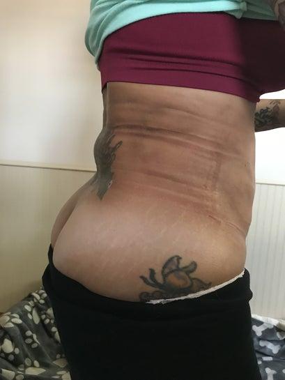 Vẫn bị bầm tím, vùng xương ức rất cứng và tôi vẫn bị đau kinh khủng sau hút mỡ 5 tuần!