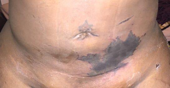 Tôi đã hút mỡ hai tuần trước. Trong ảnh là vùng bầm tím trên bụng. Trông như hoại tử da. Tôi nên làm gì?