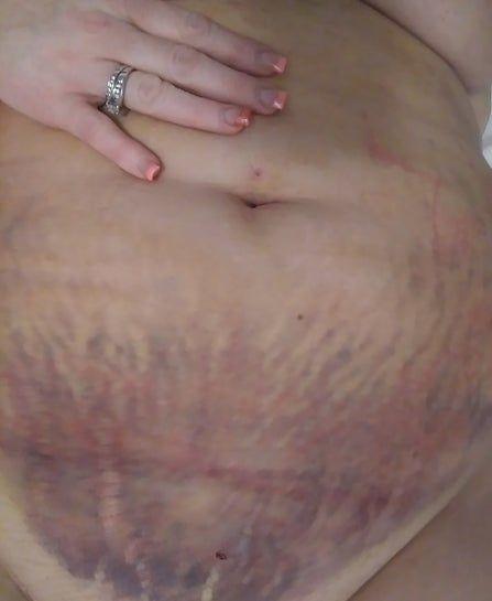 Bầm tím và sưng nề nhiều sau hút mỡ bụng - liệu đã thấy được kết quả cuối chưa?