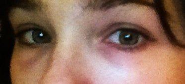 Xuất hiện quầng thâm dưới mắt sau phẫu thuật cắt mí dưới?