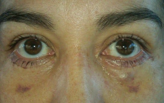 2 tuần sau phẫu thuật mí dưới: xuất hiện một vết sưng u lên ở dưới mắt, liệu có nên matxa không?