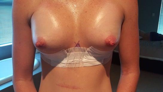Hai ngày sau phẫu thuật nâng ngực dual-plane, ngực bị cao và sưng thì có bình thường không?