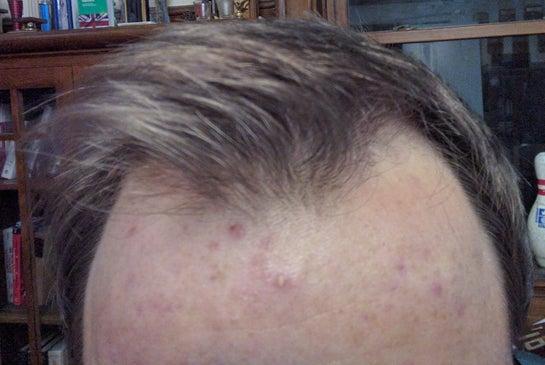 Tôi muốn làm thẳng đường chân tóc mà vẫn đảm bảo mật độ tóc tự nhiên chỉ trong một ca cấy tóc, có được hay không?