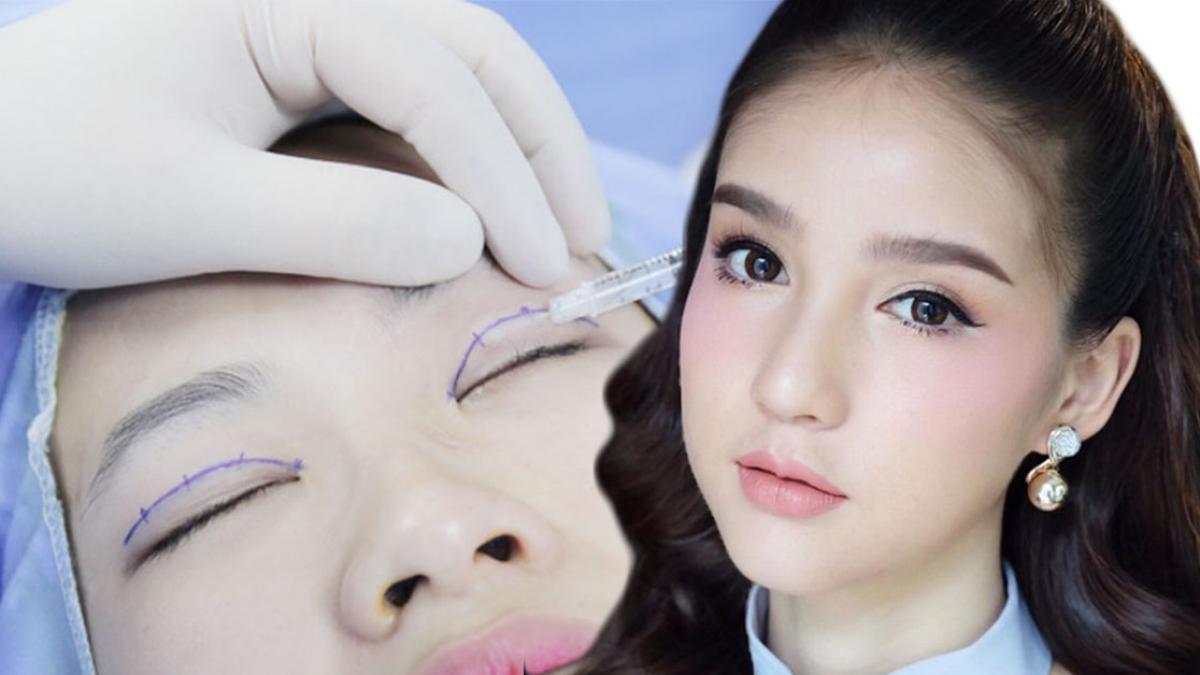 Kết quả hình ảnh cho Có những phương pháp nào để cắt mắt 2 mí?